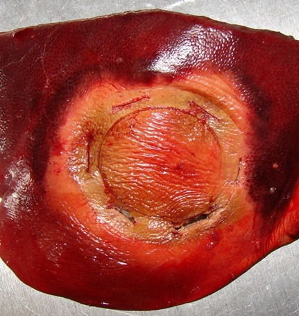 Liver after use of SwiftBlade-A