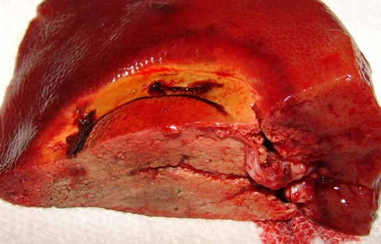 Cross-section of Liver after use of SwiftBlade-A